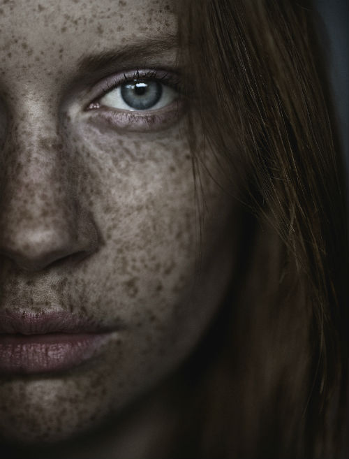carsten_witte_the_freckles_project_08_coultique