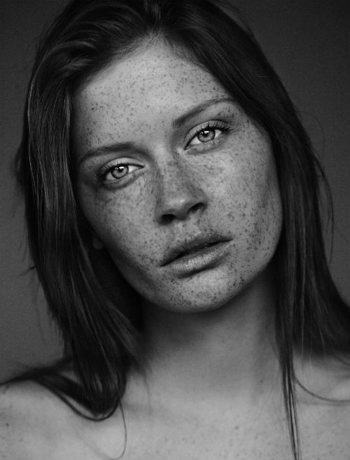 carsten_witte_the_freckles_project_09_coultique